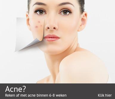 reken-af-met-acne-binnen-6-weken